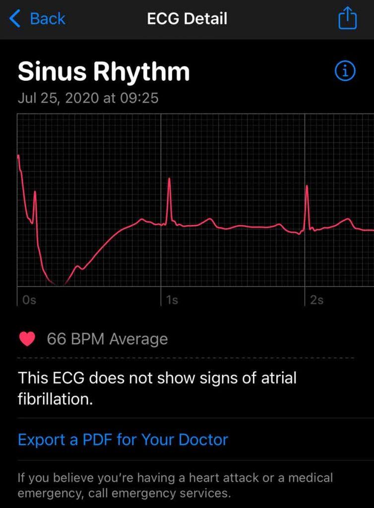 ECG details in Apple Health app from Apple Watch ECG app