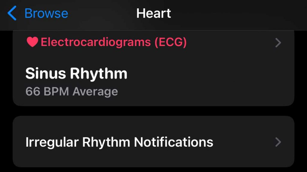 find your previous notifications for irregular heart rhythm in Apple Health app