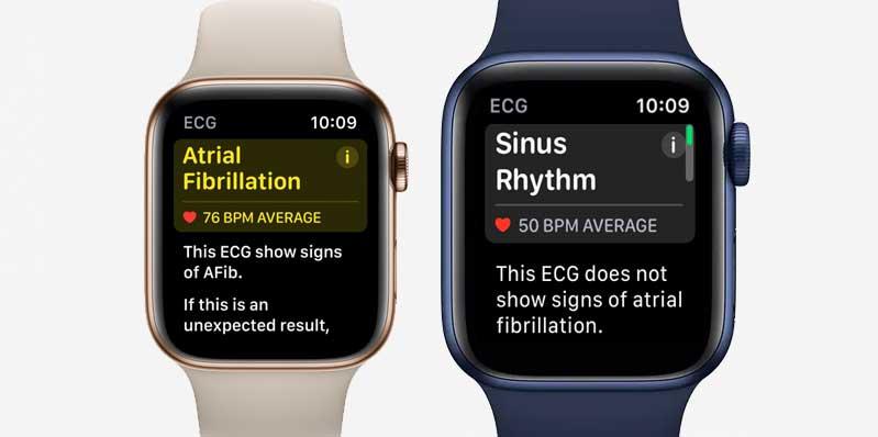 EGG app classification following taking an ECG on Apple watch
