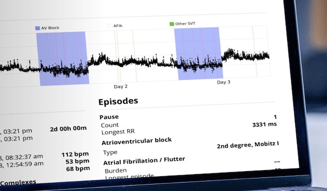 Cardiologs AI and Apple Watch