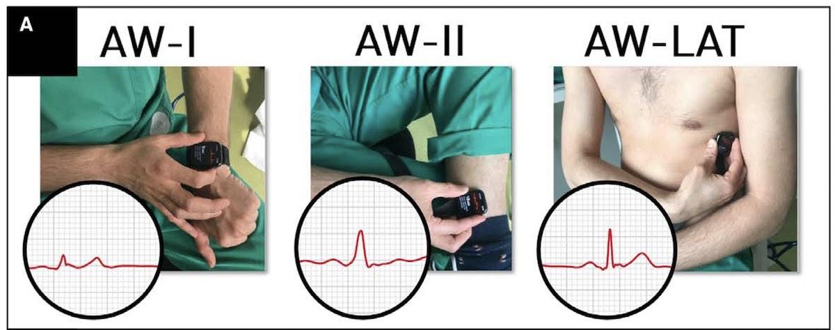 Apple Watch 6 lead ECG readings