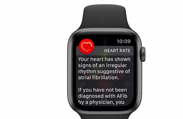 Apple Watch Afib Feature