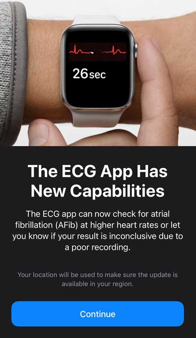 updated ECG for Apple Watch with watchOS 7.2