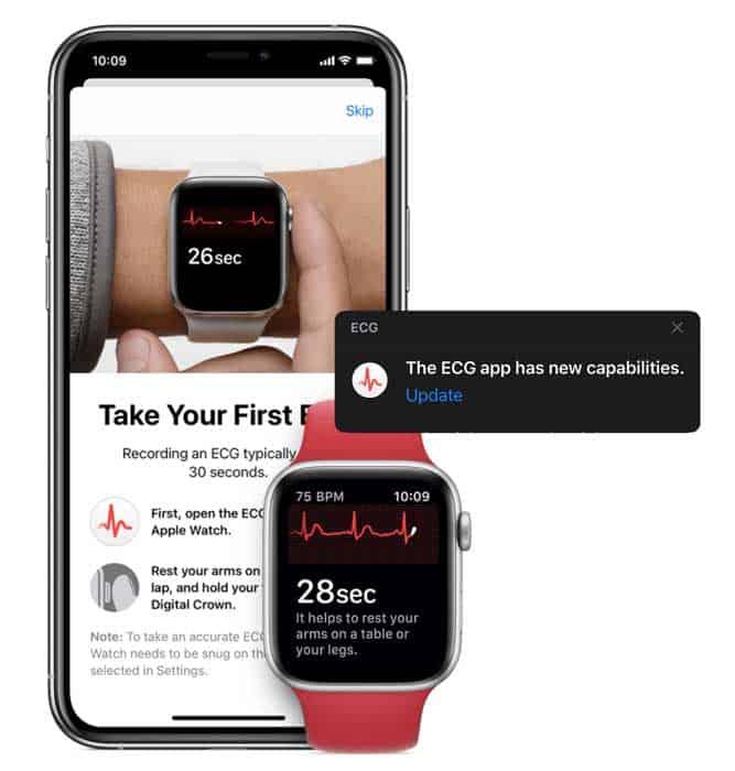 Apple Watch updates to ECG app