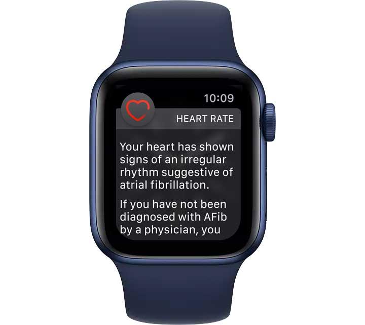 irregular heart rate and rhythm notification on Apple Watch