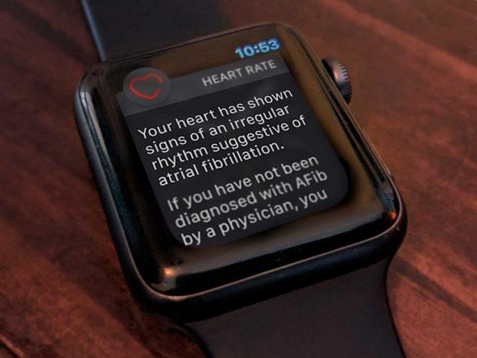 irregular heart rhythm notification on Apple Watch