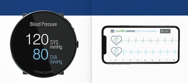 CardiacSense Watch Blood Pressure