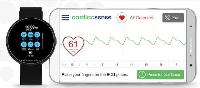 CardiacSense Watch