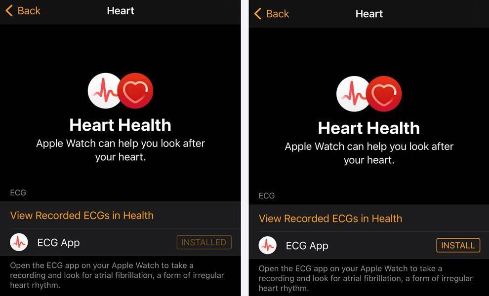 ECG app installation using the Watch app on iPhone