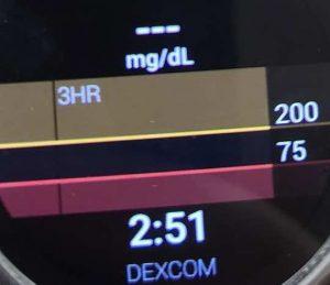 Dexcom readings missing on wearOS Smartwatch