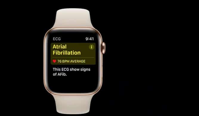 ECG Data via iOS 14 Healthkit