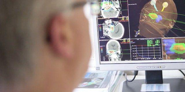 Google AI for radiology