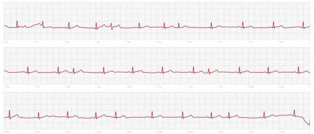 sample of an irregular heart rhythm using Apple Watch ECG app