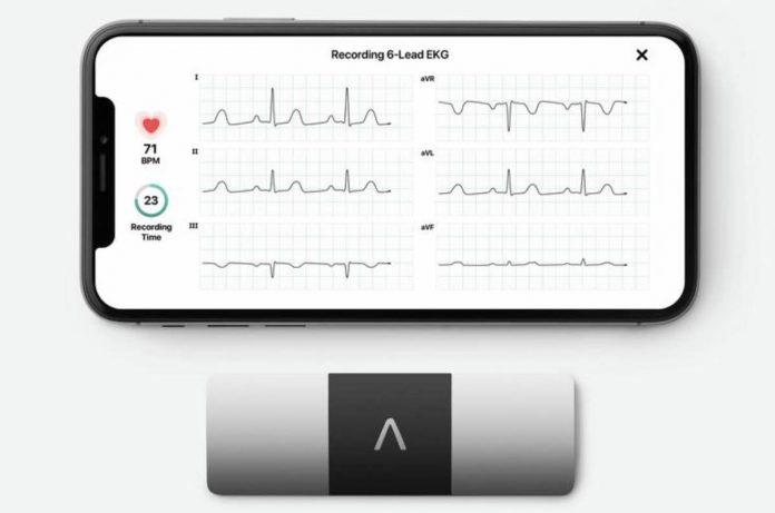 Kardiamobile 6L EKG