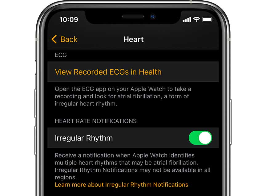 iPhone Health app irregular heart rhythm