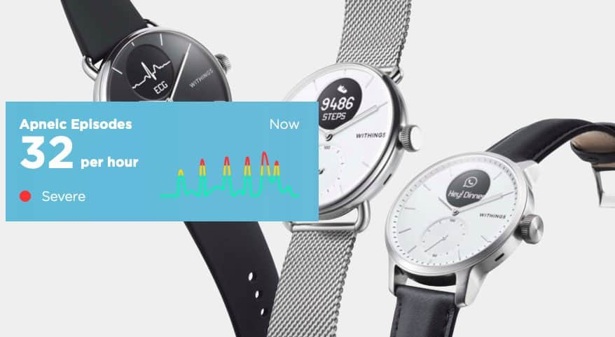 Withings sleep apnea and stress watch